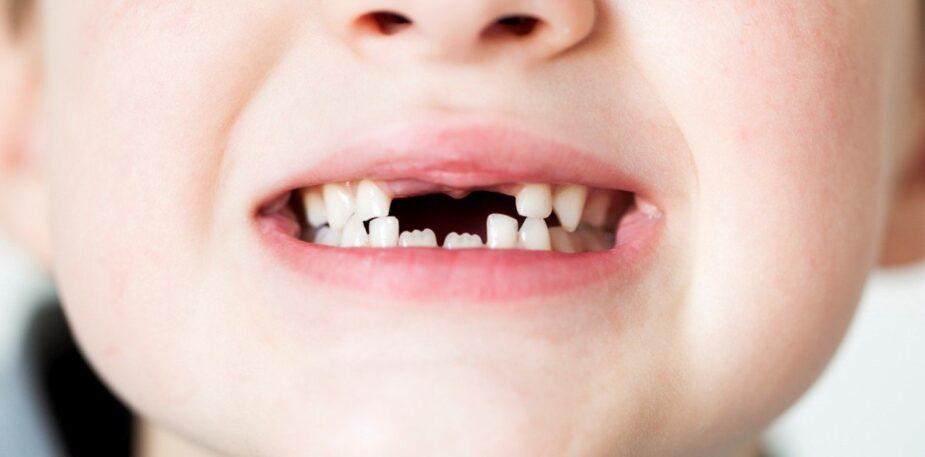 Recogida de dientes del Ratoncito perez min